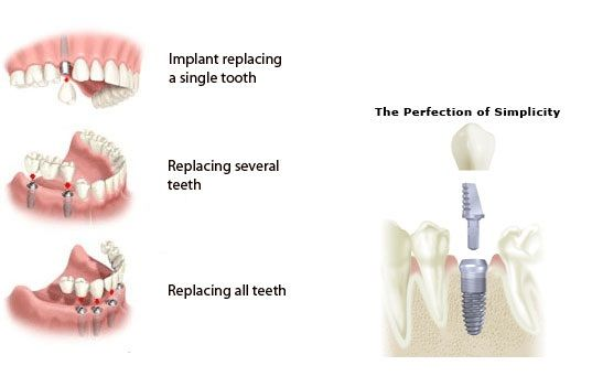 tooth implant cost manitoba