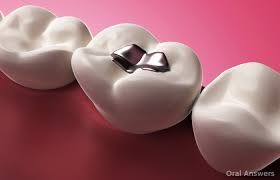 Throbbing Tooth Pain After Filling – Is It Normal To Have - http://emergencydentalcaretips.com/throbbing-tooth-pain-after-filling-is-it-normal-to-have/  Learn about toothache after deep filling pain after deep filling severe pain after filling is it normal to have toothache after a filling tooth pain weeks after filling toothache after filling how long toothache at night after filling gum pain after filling