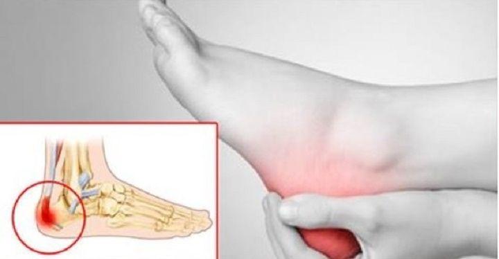 O sintoma mais desagradável do esporão de calcanhar é a intensa dor.Quem tem ou conhece alguém com esse problema sabe bem a…