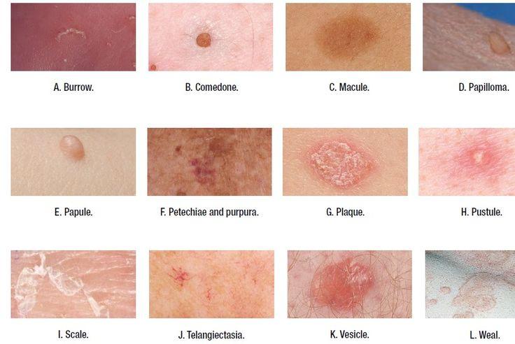 гармонических образование на коже в виде углубления дайте ссылку Проекты