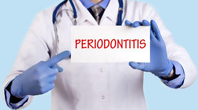 The Contributing Factors of Periodontal Disease   - Environmental Diseases Treatment Plan