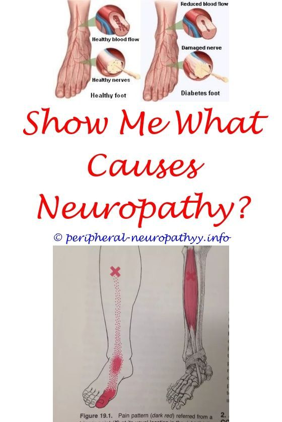 Anti Mag Neuropathy Icd 10 | ICD-10 | Diabetic neuropathy