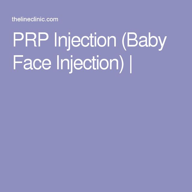 PRP Injection (Baby Face Injection) |