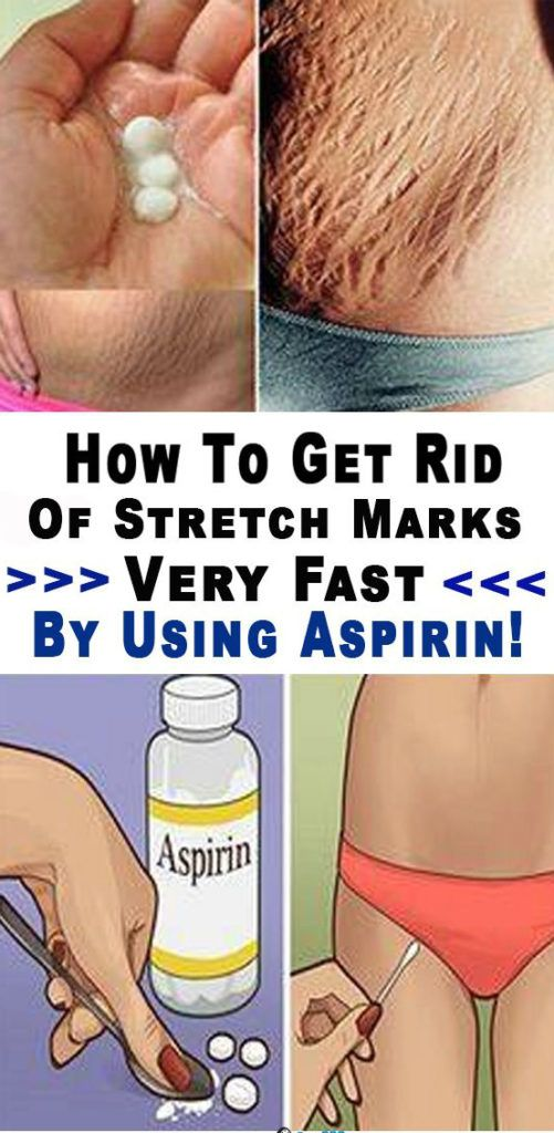 Every Woman Needs to Know These 10 Life-Changing Aspirin Tricks!