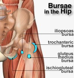 hip bursae Anatomy of the Hip  A bursa is a small sac of fluid that acts as a cushion between bones and the overlying soft tissues, reducing friction between the bone and muscles.