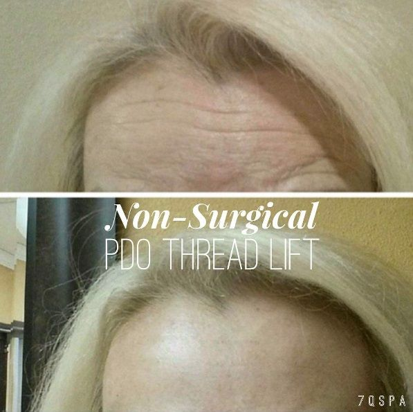 Non surgical PDO Thread Life gives you results that a face lift would with no incisions and no downtime. Introducing #PDO #ThreadLift - a minimally invasive procedure that is completely non-surgical. Used for Face Lifts, Brow Lifts, Facial Contouring, Lip Shaping, Excess Neck Fat and MORE! Call us for details and a FREE consult! 818.553.3777