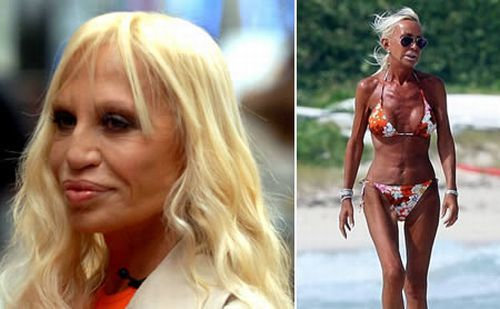 Donatella Versace Plastic Surgery Nose Job Face Lift Lip