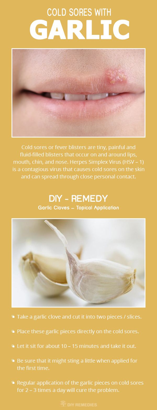 Get Rid of Cold Sores with Garlic