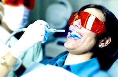 Teeth Whitening In Canberra