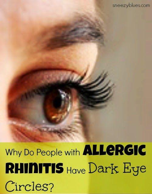 how to get rid of watery eyes allergies