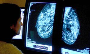 Breast cancer study finds  using Herceptin in combination with another drug can shrink tumours in less than two weeks.   The findings could potentially lead to fewer women needing chemotherapy, researchers say. The Guardian