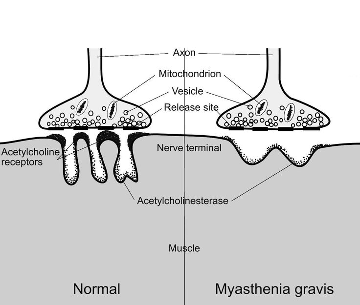 an overview of the chronic autoimmune disorder myasthenia gravis Myasthenia gravis overview myasthenia gravis (mg) is a chronic autoimmune disorder that results in progressive skeletal muscle weakness skeletal muscles are primarily muscle fibers that contain bands or striations (striated muscles) that are connected to bone.