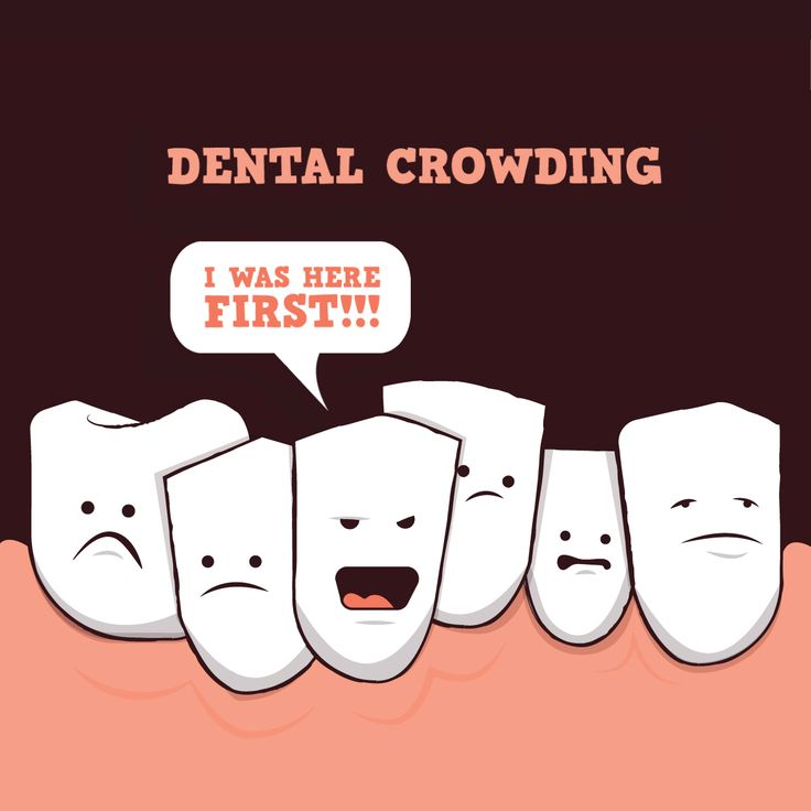 DO YOUR TEETH LOOK LIKE THIS? Orthodontics will reverse crowding before it can cause bigger problems!