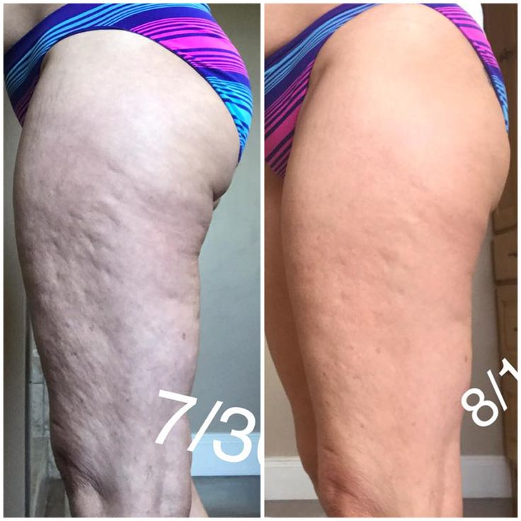 Do you have deep dents in your skin that seem impossible to get rid of?! You're not alone! Deeper dents and dimples are just another sign of tight, adhered fascia. You can release these adhesions and smooth out these dents and dimples through fascia treatment using the FasciaBlaster and the Nugget. Learn more about how to use this amazing little tool to effectively target those dents, and a whole lot more!