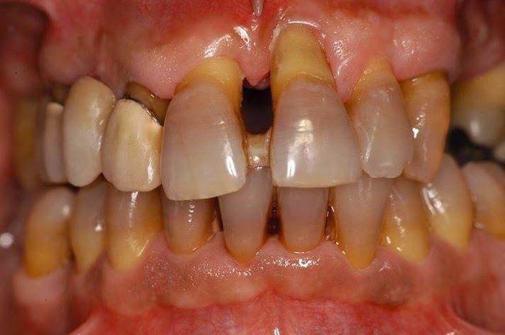 Turismo Dentisti Croazia: CORRELAZIONE TRA FUMO E FALLIMENTO IMPLANTARE - impianto dentale
