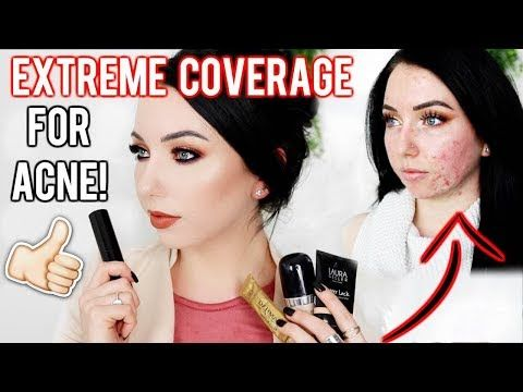 MY TOP FOUNDATIONS FOR ACNE & TEXTURED SKIN! Full/Extreme Coverage Makeup | Fair Skin - YouTube