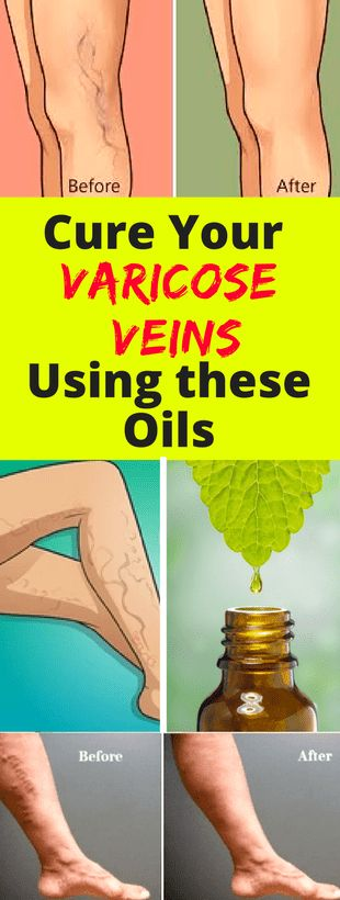 Cure Your Varicose Veins Using these Oils - Fitnez Freak