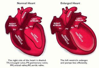 Can a person die from a broken heart? Takotsubo or broken heart syndrome is different from a heart attack but have common symptoms