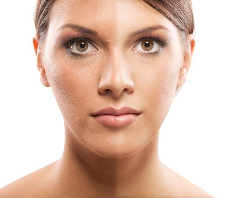 vitamin b5 acne dosering