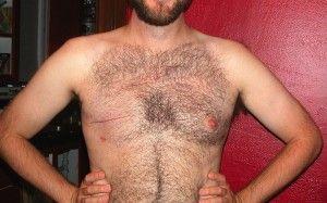 Cáncer de seno en hombres.
