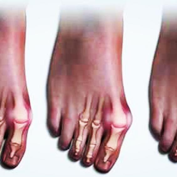 Ältere Dame Soles Feet