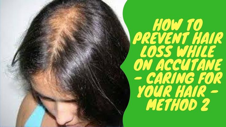 How to Prevent Hair Loss While on Accutane - Caring for Your Hair - Meth...