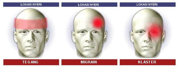 39+ Sakit kepala tegang adalah ideas in 2021
