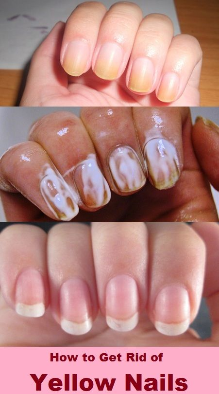 Home Remedies for Yellow Nails | Beauty | Pinterest | Remedies ...