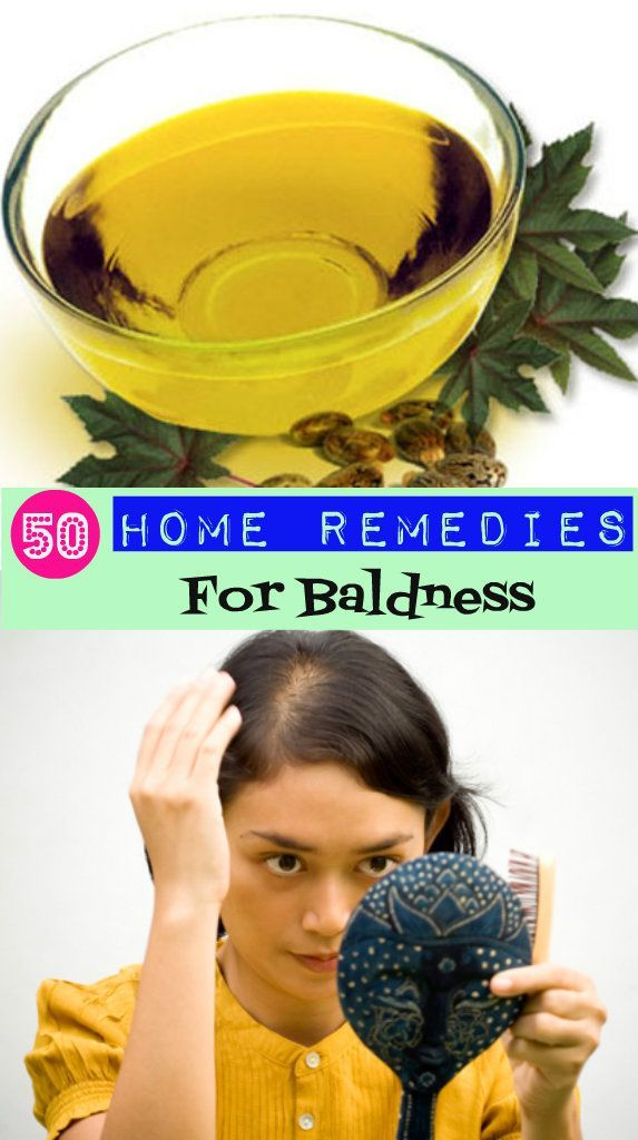 How to remove baldness by home remedies