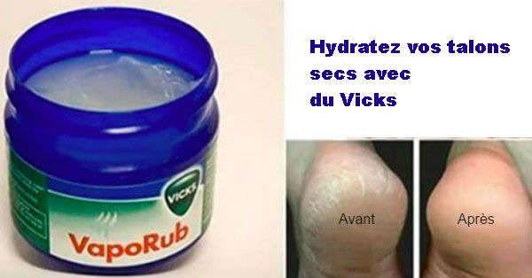 Hydratez les talons avec vicks vaporub