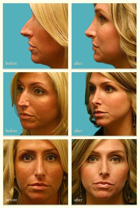 Facial plastic surgeons in vancouver washington-9315
