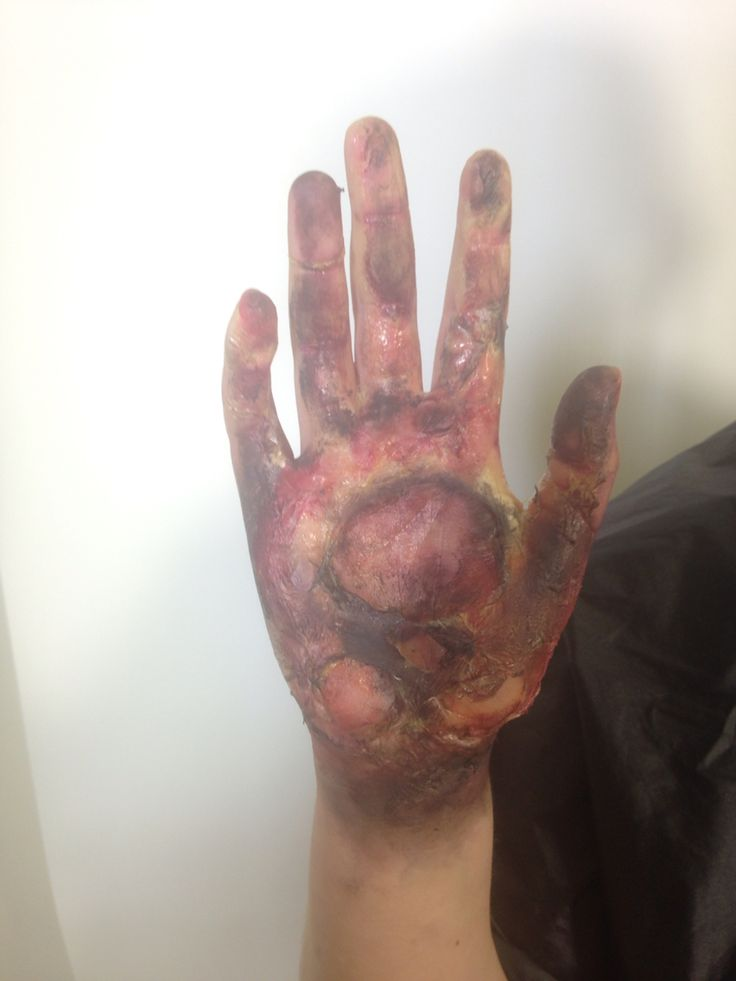 Special effects - burnt hand