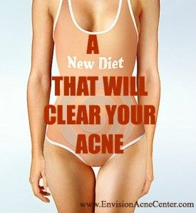 A new diet that will Clear Your Acne.  CLICK HERE to learn more....www.EnvisionAcneCenter.com