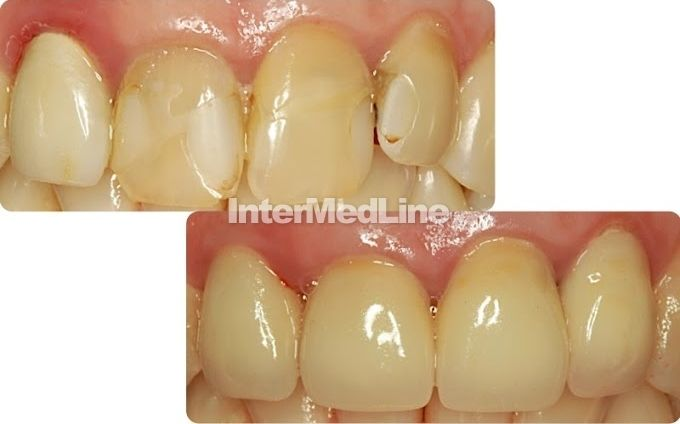 Cosmetic dentistry.  Dental treatment in dental clinics Romania. Affordable dental works to resolve your dental problems. www.intermedline.com   #dental , #dentistry , #teeth, #dentists , #dentalclinic,