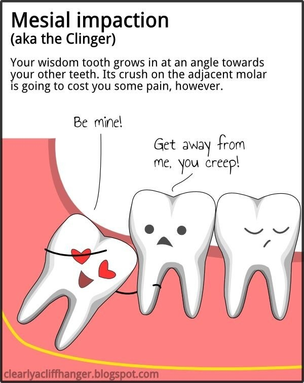 Mesial impaction - the clinger. #Dental humor. Natalie Lenser, DDS - pediatric dentist in Modesto, CA @ www.toothfairyteam.com