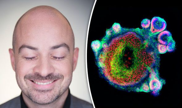 You Can See More: Baldness cure? Stem cells from MICE used to create skin in a lab