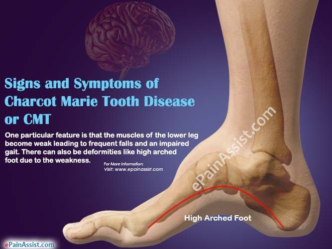 35 Best Charcot Marie Tooth Images On Pinterest Tooth