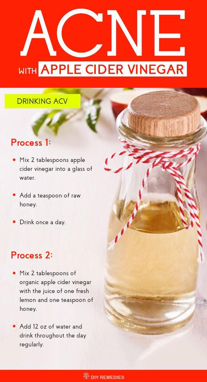 Drinking Apple Cider Vinegar Cystic Acne
