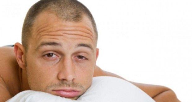 Mejores 24 imágenes de alopecia en Pinterest | Caída del ...