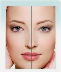 ODONTOLOGIA  ORO FACIAL . Toxina Botulínica e Preenchimento Facial: A Beleza sob a ótica da Proporção Áurea e a Simetr...