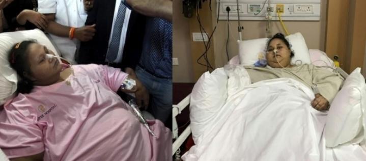 #Mulher com 500 kg passa por cirurgia e tem resultado impressionante - Blasting News: Blasting News Mulher com 500 kg passa por cirurgia e…