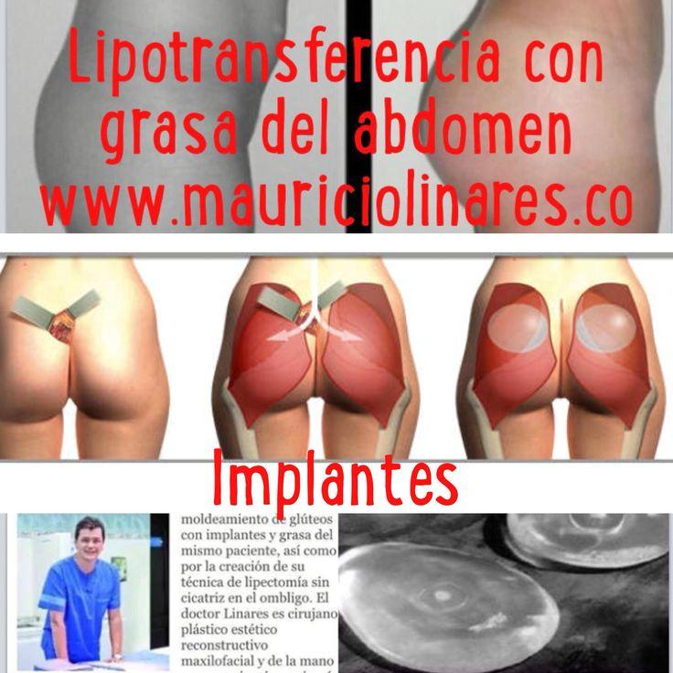 http://www.mauriciolinares.com/cirugia-de-gluteos/