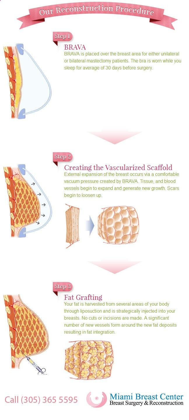 Diagram of the Miami Breast Center's breakthrough breast reconstruction procedure. The micro-fat grafting procedure, BRAVA   AFT, is the least invasive form of reconstruction and produces the most natural results. No implants nor flaps. Only the patient's own fat is used. Results are permanent. www.miamibreastce...