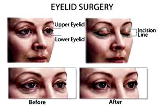 1000 Ideas About Eyelid Surgery On Pinterest Facial