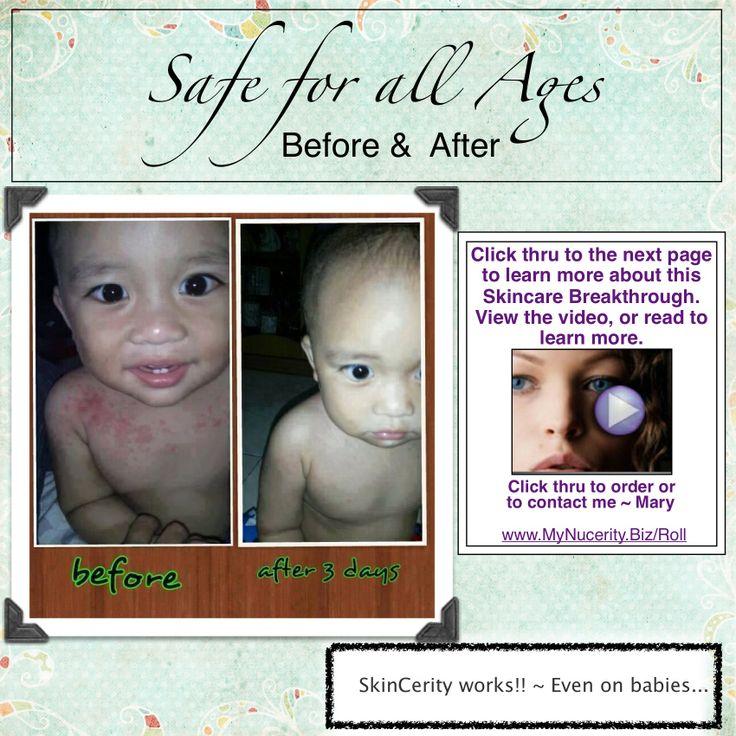 Baby rashes benefit from Skincerity. www.MyNucerity.Biz/Roll