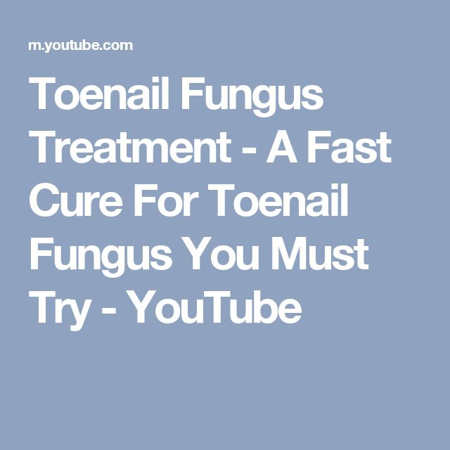 Toenail Fungus Treatment - A Fast Cure For Toenail Fungus You Must Try - YouTube