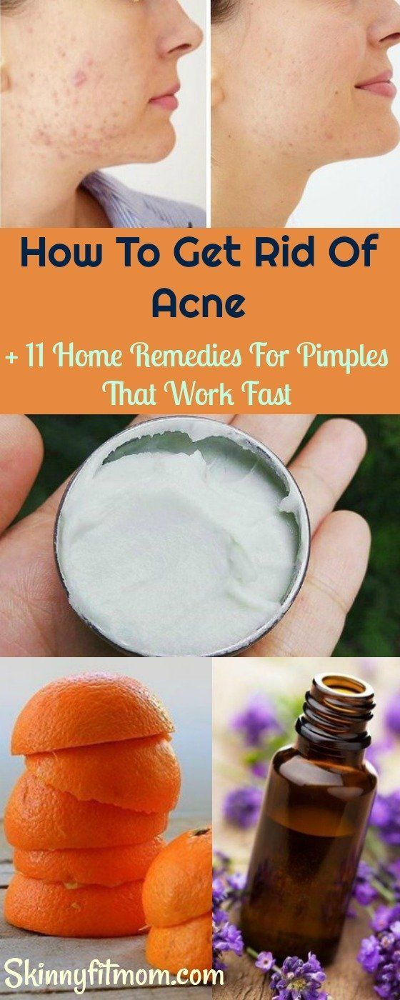 Here's How To Get Rid Of Acne fast + 11 Home Remedies For Pimples That Work like magic. #Acnetreatment #Acne #Pimples #skincare #acneaid,