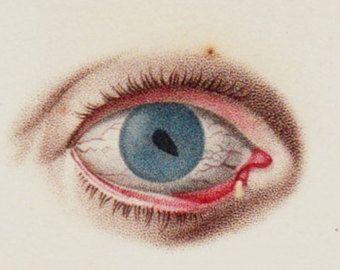 Litografía de 1818 ojos antiguos extraña impresión, fina anatomía, pupila, iris, globo ocular, cirugía del globo ocular, originales antiguos 198 años