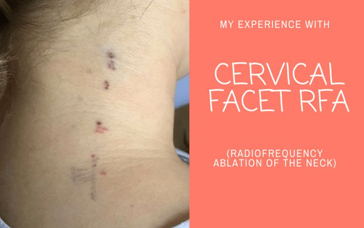 My Experience with Cervical Facet RFA (Radiofrequency Ablation of the Neck)