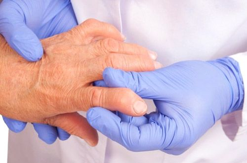 Five Little Thing of Arthritis Treatments